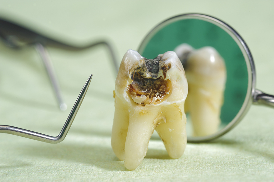 extracted tooth with cavities and dental equipment